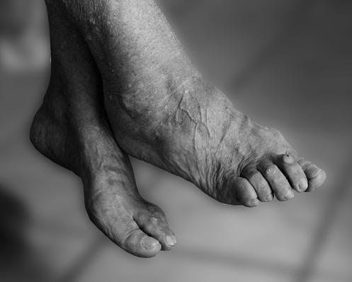 oudere voeten